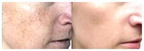 King Dermatology