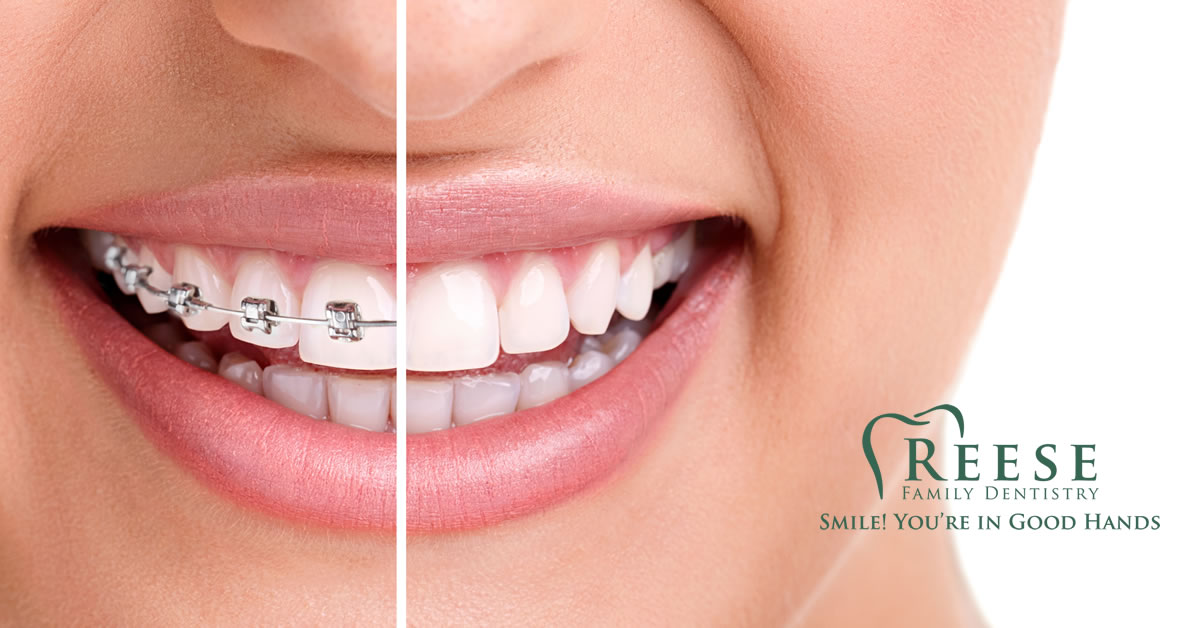 Adult Braces Reese Family Dentistry