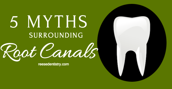 5 Myths Surrounding Root Canals