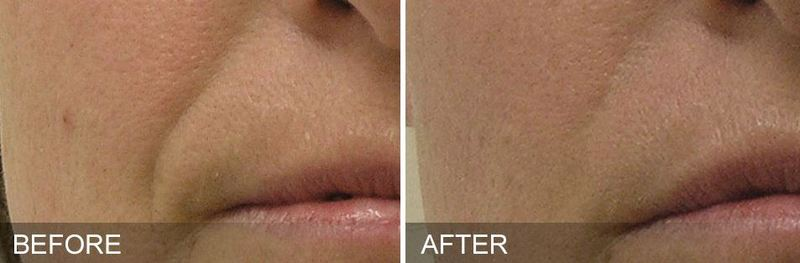 HydraFacial | Restore by King Dermatology | Mountain Home, AR